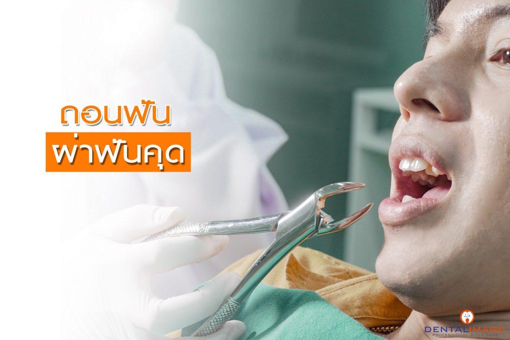 ถอนฟัน ผ่าฟันคุด